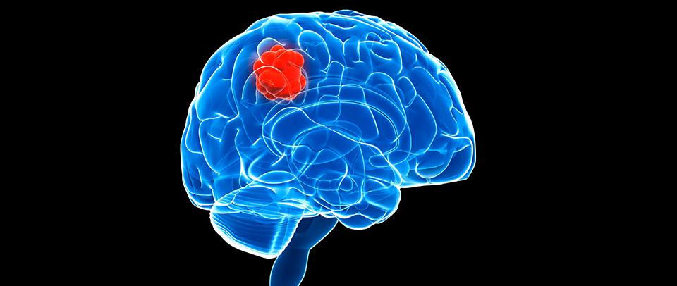 Brain Tumor Surgery