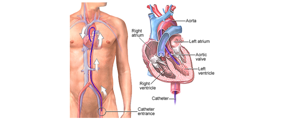 coronary angiography surgery
