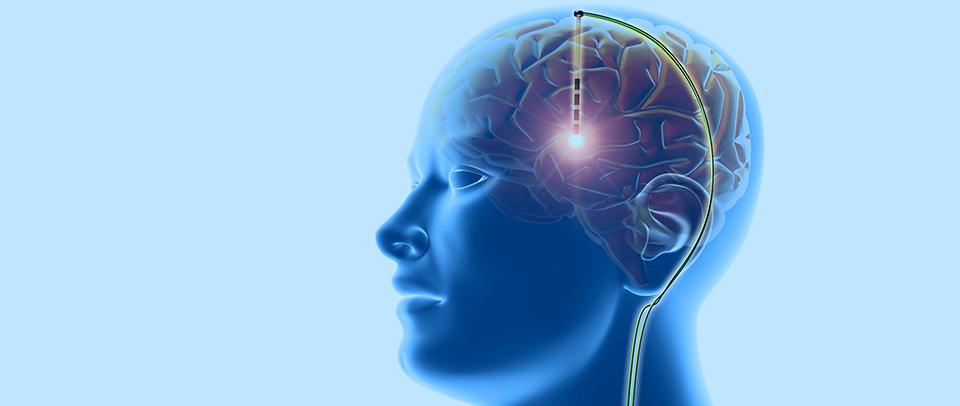 Deep Brain Smulaon
