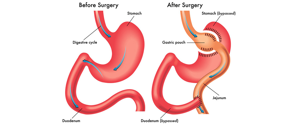 gastric-bypass-surgery-treatment