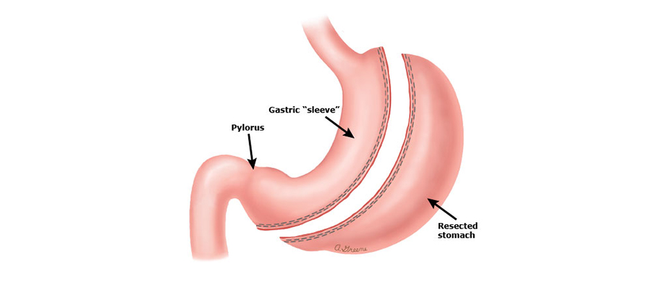 gastric sleeve surgery india