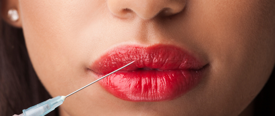 Lip Augmentation Surgery