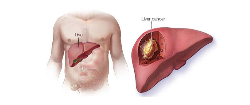 Liver Cancer – Texila Medicare