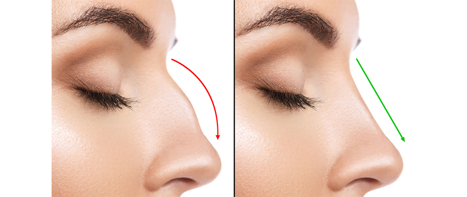 Rhinoplasty (Nose Job) Surgery