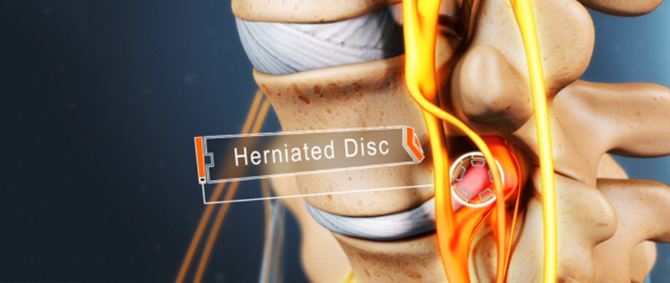 Slipped Disc Surgery