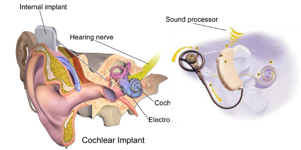 cochlear-implant-surgery